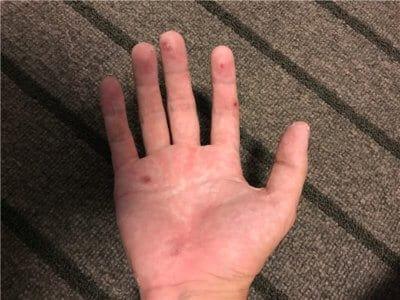 ビオチンを一ヶ月飲んだ汗疱の状態写真