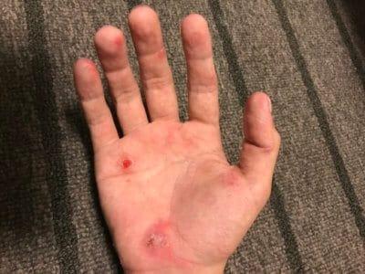 汗疱にビオチン治療2ヶ月目手のひら