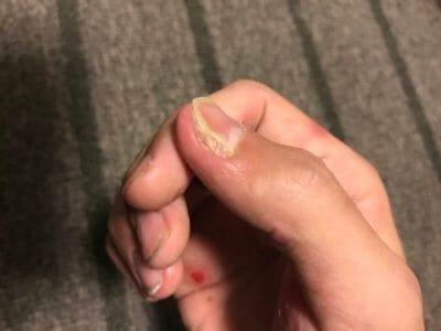 汗疱にビオチン治療してみる2ヶ月目の爪の変化横からの写真