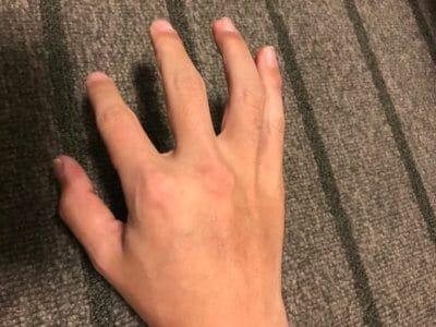 汗疱にビオチン治療2ヶ月目手の甲