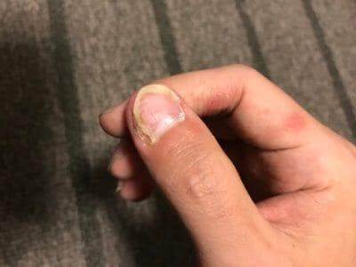 汗疱にビオチン治療してみる2ヶ月目の爪の変化