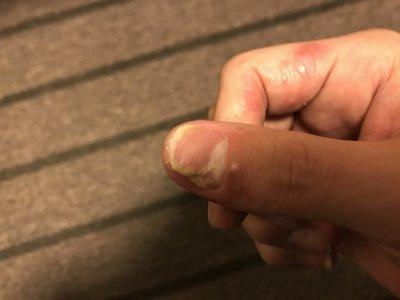 汗疱で爪がはがれて3ヵ月
